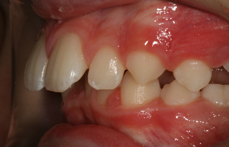 Reigate Orthodontics - Growth Modification Before - Side