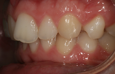 Reigate Orthodontics - Crowding Before - Side