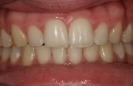 Reigate Orthodontics - Crowding After - Front