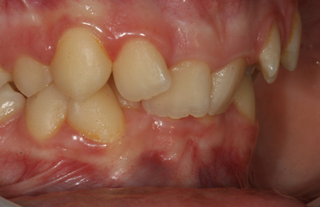 Reigate Orthodontics - Crowding Braces Before - Side