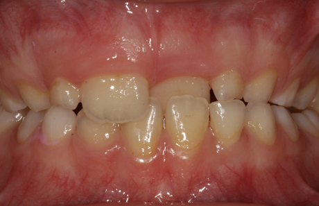 Reigate Orthodontics - Removable Braces Before - Front