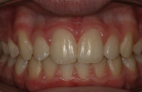 Reigate Orthodontics - Growth Modification After - Front