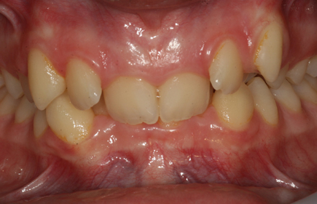Reigate Orthodontics - Crowding Braces Before - Front