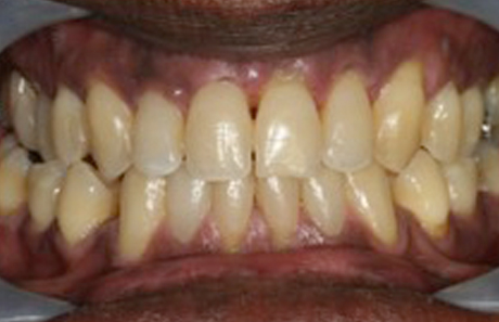 Reigate Orthodontics - Adult Braces After - Front