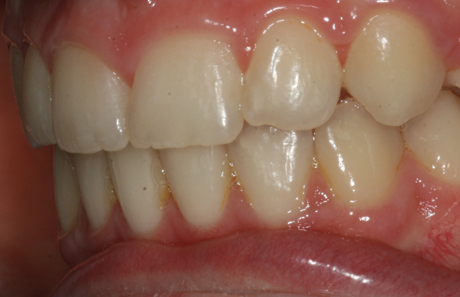 Reigate Orthodontics - Crowding Braces After - Side