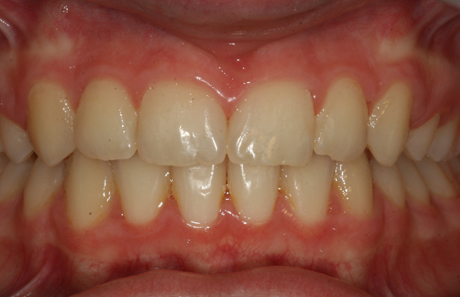 Reigate Orthodontics - Crowding Braces After -  Front