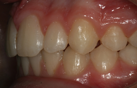 Reigate Orthodontics - Growth Modification After - Side
