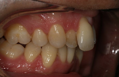 Reigate Orthodontics - Adult Braces Before - Side