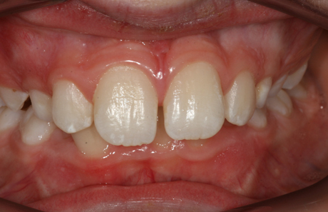 Reigate Orthodontics - Growth Modification Before - Front