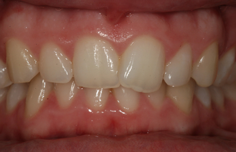 Reigate Orthodontics - Crowding Before - Front