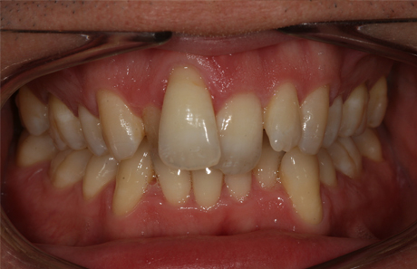 Reigate Orthodontics - Adult Braces Before - Front