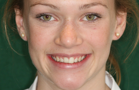 Crooked Teeth to straight teeth from Reigate Orthodontics